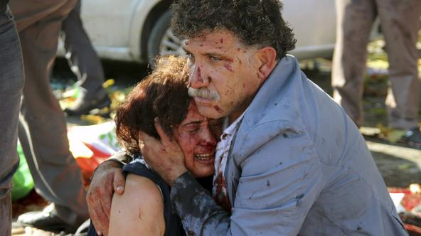 ATTENTION EDITORS - VISUAL COVERAGE OF SCENES OF INJURY OR DEATH An injured man hugs an injured woman after an explosion during a peace march in Ankara, Turkey, October 10, 2015. At least one explosion shook a road junction in the centre of the Turkish ca