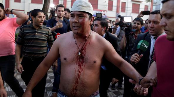 ATTENTION EDITORS - VISUALS COVERAGE OF SCENES OF DEATH OR INJURY A protestor, who is wounded by a rubber bullet in clashes with police during a demonstration against a possible change in law to allow for presidential re-election, stands in front of the C