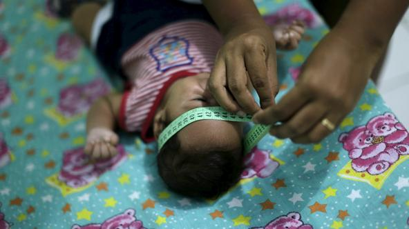 Guilherme Soares Amorim, 2 months, who was born with microcephaly, gets his head measured by his mother Germana Soares, at her house in Ipojuca, Brazil, February 1, 2016. Brazil's top health official said on Monday that the Zika virus outbreak is proving