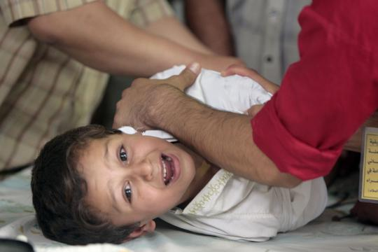 obrezivanje 'A little boy cries as he undergoes circumcision in the eastern Baghdad district of Sadr City, on July 10, 2009. Two hundred boys were circumcised for free by medics using local anesthetic